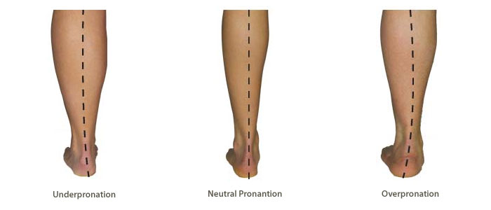 as linked with and understand pronation overpronation can pronation